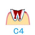 むし歯の段階・治療方法