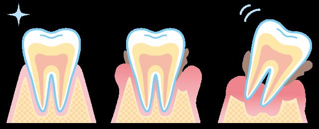 歯が失われる原因は?