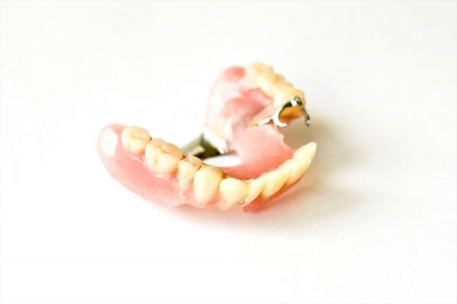 入れ歯治療(義歯治療)