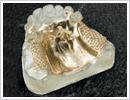 チタン製総入れ歯