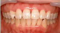歯の内側からの着色